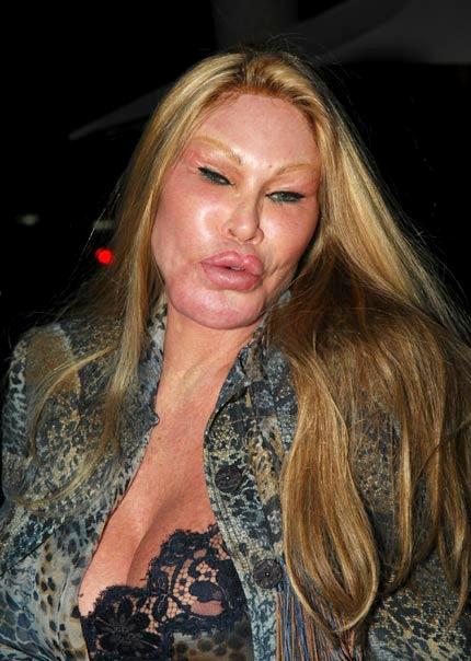 Botox 171 Tammy S Turns